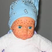 varicelle-maladie-enfant